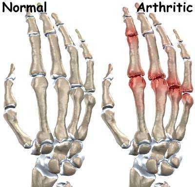 hand finger joint arthritis