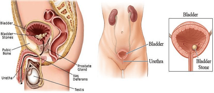 bladder stones causes symptoms and treatments
